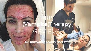 Vlog-Review: PRP (or Vampire) Therapy/ Μύθοι και αλήθειες
