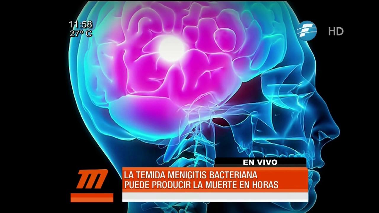 sintomas de una meningitis bacteriana