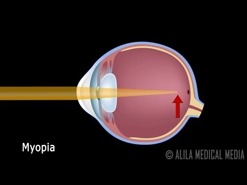 Eye Anatomy And Common Defects Animated Tutorial