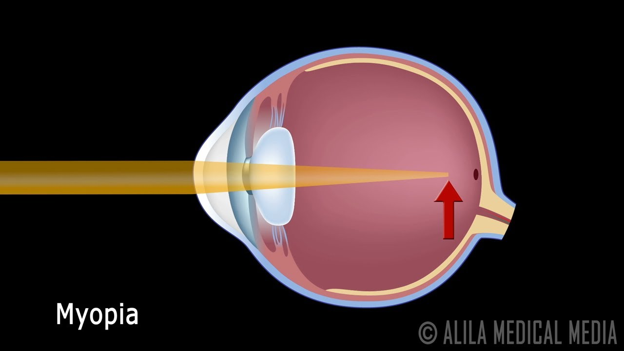 hight resolution of eye anatomy and common defects animated tutorial