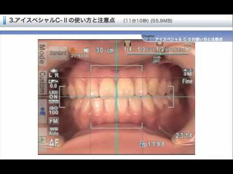 03 EyeSpecial CII for use and precaution