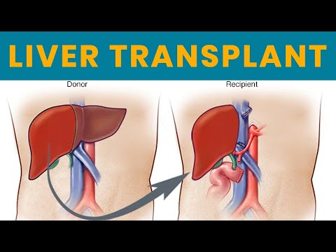 """""""Apollo Hospitals Delhi Is A Pioneer In Liver Transplant In India Since 1998."""" - Dr. Neerav Goyal"""