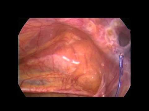 Laparoscopic, Non-Mesh, Inguinal Hernia Repair  (Todd Ponsky)