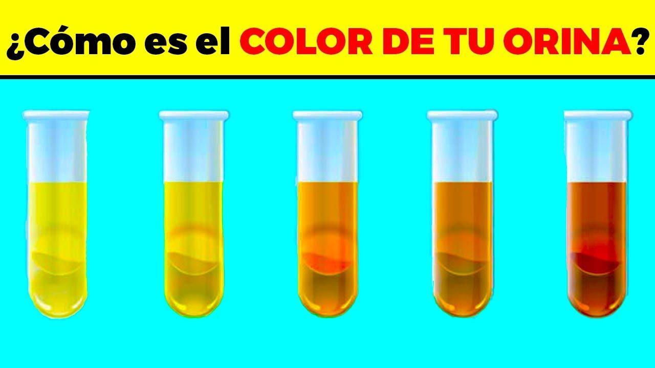 MIRA lo que el color de tu orina dice del estado de salud en que te encuentras