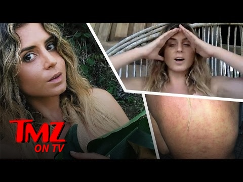 Surfer Anastasia Ashley Got Attacked By Sandflies and It Looks Painful | TMZ TV
