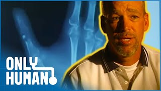 Man Has Thumb Bone Replaced With Leg Bone | Amazing Medical Stories | Only Human