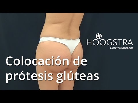 Colocación de prótesis glúteas (15157)