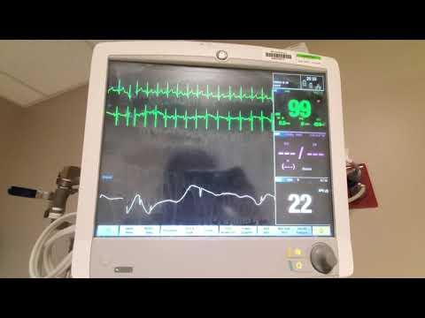 Tips For GE Bedside Monitors