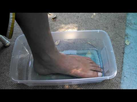 Listerine and vinegar melt the skin of your feet