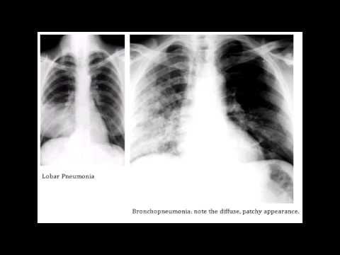 Bronchopneumonia X Ray | www.pixshark.com - Images ...