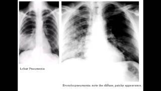 Lobar Pneumonia & Bronchopneumonia - Organisms & Characteristics