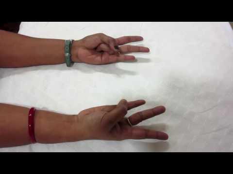 Yoga Mudra Therapy at Vikram Neurology Hospital Bangalore