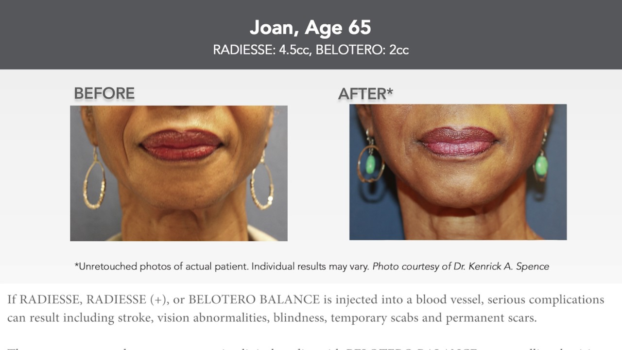 Radiesse - Timeless Age Defying Laser Clinic | Timeless Age