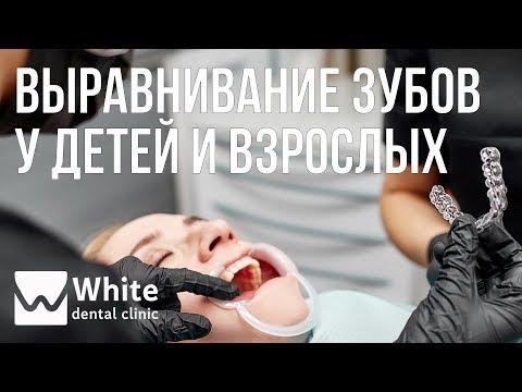Ортодонт - Выравнивание зубов у детей и взрослых. Брекеты. Капы
