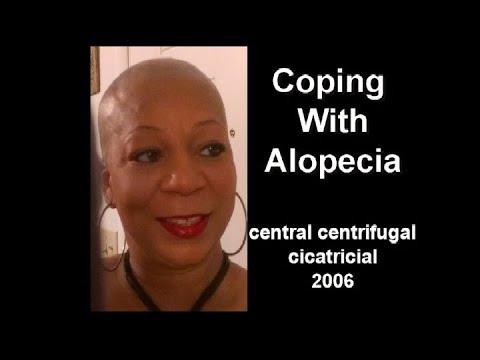 Coping with Alopecia hair loss