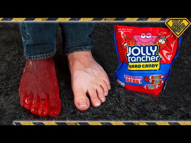Turning My Foot Into a Jolly Rancher