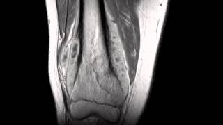 Conventional Osteosarcoma, Distal Femur
