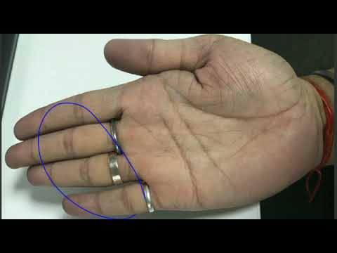 Huge property indication in male hand