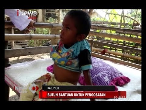 Cerita Hanadi, Gadis Kecil YAMAN Penderita Kelainan Tulang Belakang.