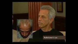 Jim's Hair Restoration Testimonial