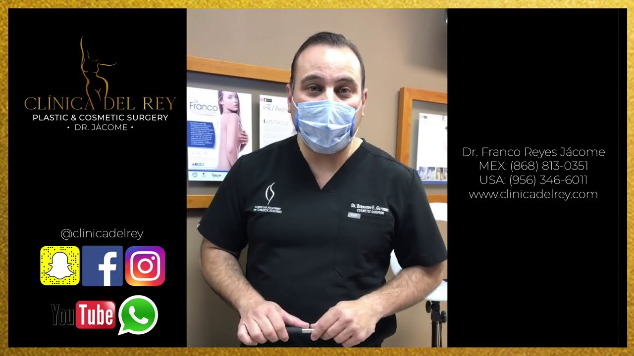 Implante de Glúteos 480cc Biconvexo - 2 Semanas Postoperatorio - Clínica del Rey - Dr. Franco Reyes
