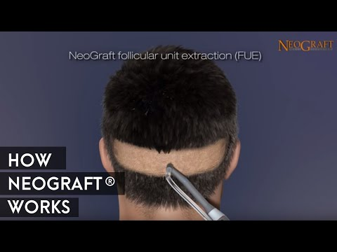 Animation on How NeoGraft® Works