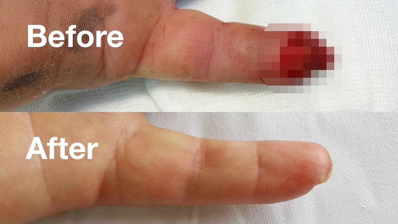 Pastile pentru dureri articulare arkoksia - ARCOXIA – farmacie online