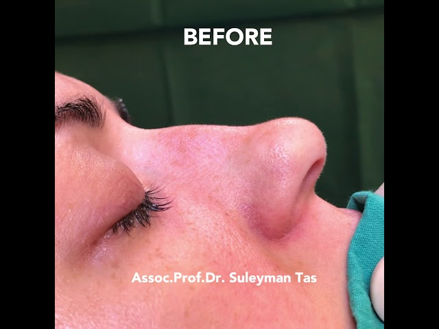 Closed Atraumatic Rhinoplasty | Redraping and Correction of the Severe Deviations