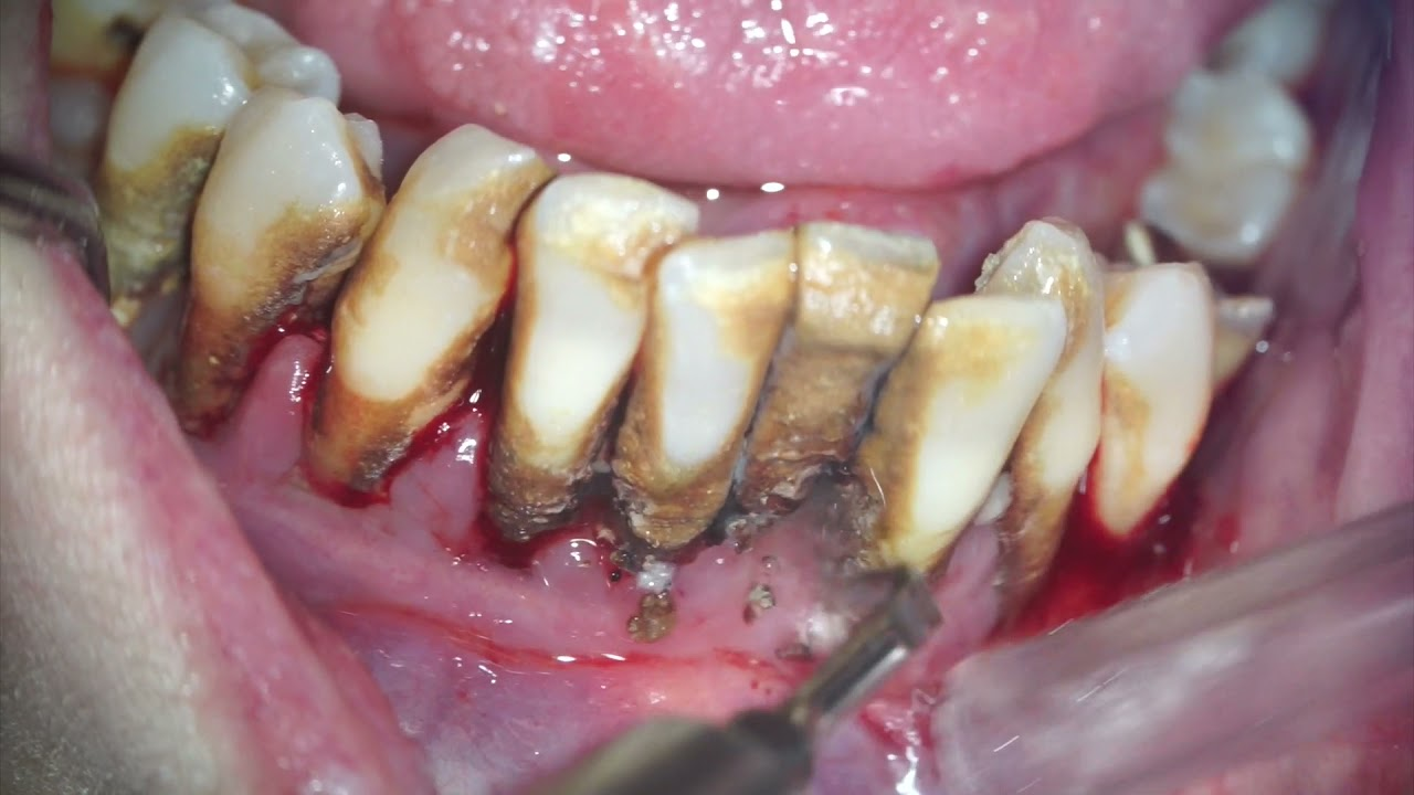 Download Scaling and root planing - huge dental calculus