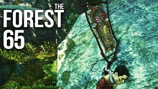 THE FOREST [HD+] #065 - Patch 0.05: Eiter-Fuß & Bogenspaß ★ Let's Play The Forest