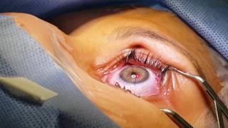 Ocular laser azul veia sob
