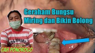 Operasi Gigi Bungsu Impacteed Teeth| Share Pengalaman pribadi aku buatkan untuk temen-temen yang but.