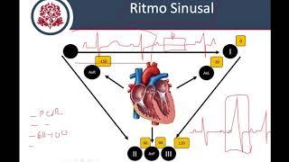 Como Interpretar Cualquier Electrocardiograma