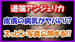 道端アンジェリカが肌の病気、すっぴん写真がヤバイ!!(画像あり) SN...