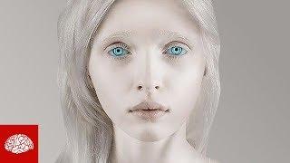 Fakten über Albinos
