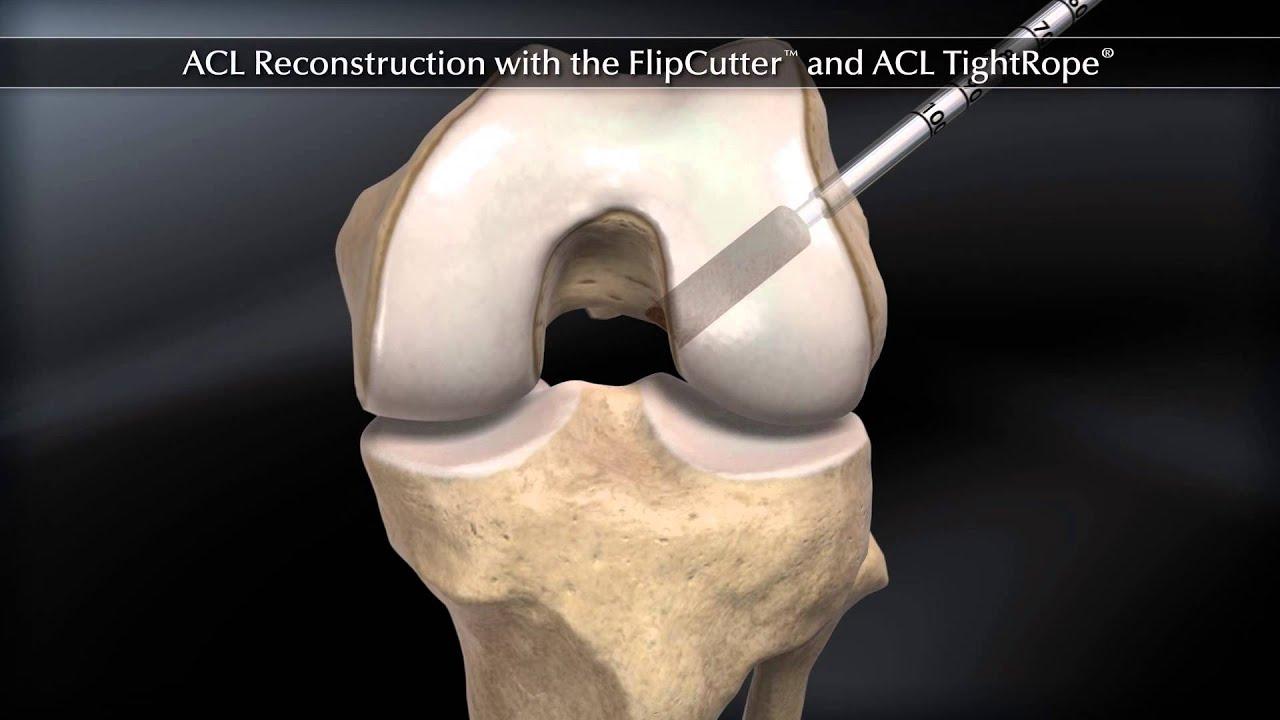 ACL TightRope ARTHREX