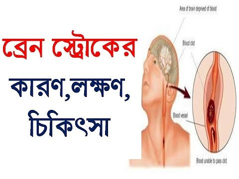 How to prevent or cure brain stroke | ব্রেইন স্ট্রোকের কারণ, লক্ষণ, চিকিৎসা