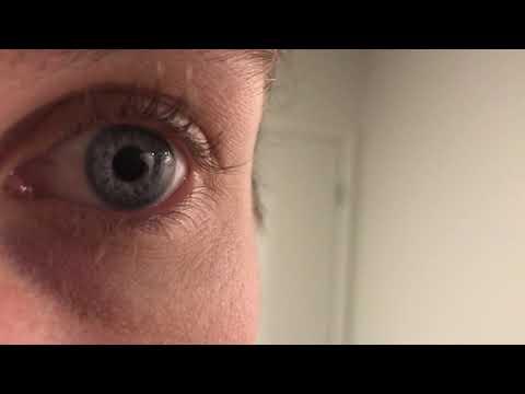 Hippus eye