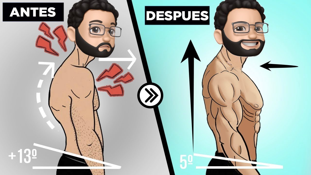 CORRIGE tu POSTURA en 10 MINUTOS - ¡La MEJOR RUTINA para mejorar tu postura! [estética y funcional]