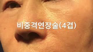 [수원코성형][수원성형외과]매부리절골술+비중격연장술후_…