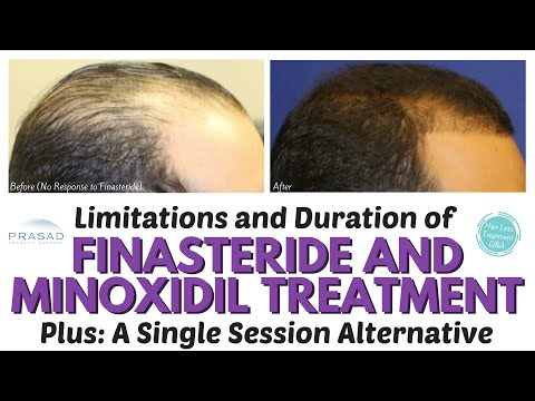 the-lifelong-duration-of-finasteride-and-minoxidil-hair-loss-treatment,-and-a-one-time-alternative