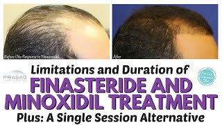 The Lifelong Duration of Finasteride and Minoxidil Hair Loss Treatment, and a One-Time Alternative