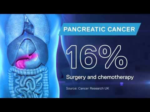 New pancreatic cancer drug treatment 'extends survival'