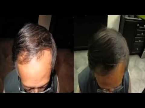 Hair Loss Protocol - Hair Loss Protocol Review