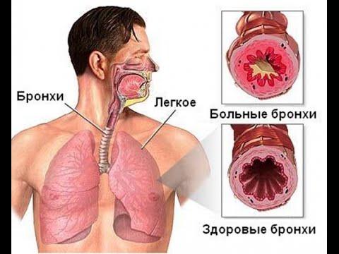Лечение сухого кашля - Кашель