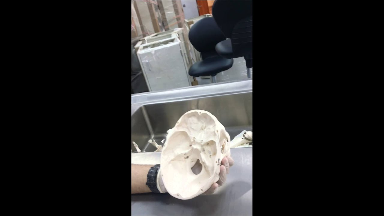 Anatomy Lab 15 Head And Neck Skull And Internal Structure