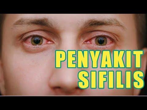 penyakit-sipilis-(sifilis,-raja-singa):-obat,-ciri-ciri,-gejala-dan-tanda-tanda-sipilis