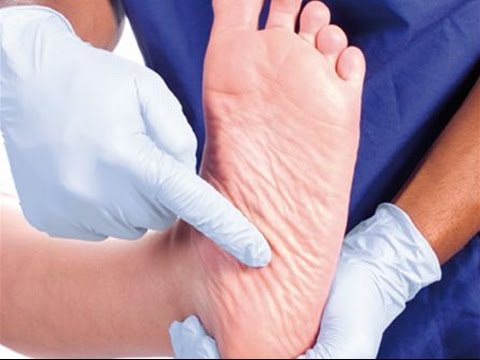 7 Diabetes Foot Care Tips - Diabetic foot problems