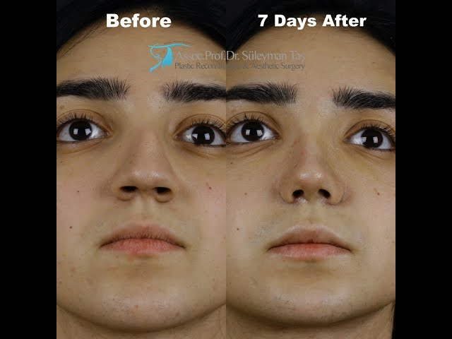 90° TAS Video | Before & 7 Days After Revision Closed Rhinoplasty