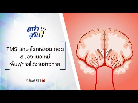 TMS รักษาโรคหลอดเลือดสมองแนวใหม่ ฟื้นฟูการใช้งานร่างกาย : รู้เท่ารู้ทัน (18 ก.ย. 63)